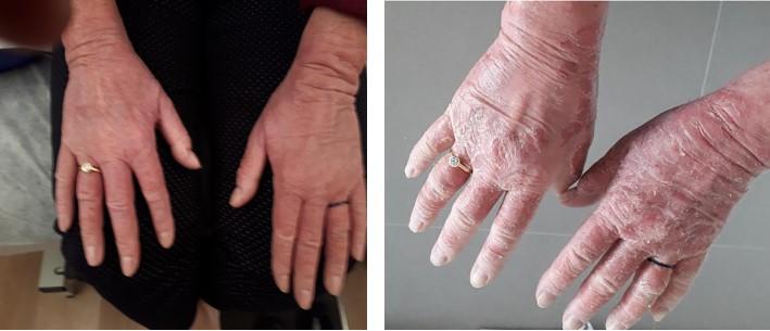 אטופיק דרמטיטיס בידיים לפני ואחרי