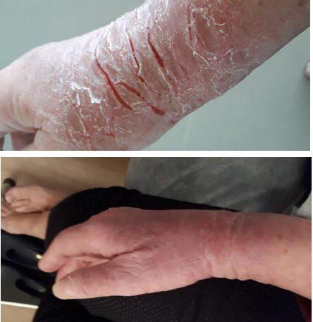 אסטמה של העור ביד - לפני ואחרי