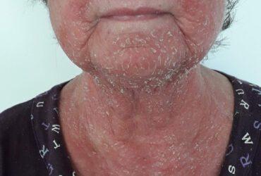 אסטמה של העור אצל מבוגרים