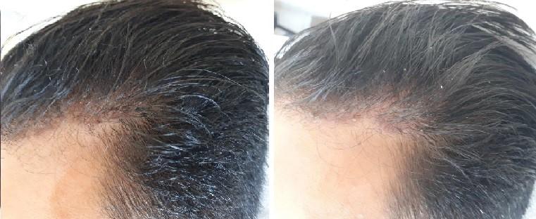 סבוריאה בקרקפת - לפני ואחרי טיפול
