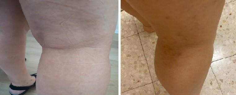 פיטריאזיס רוזיאה ברגל - לפני ואחרי
