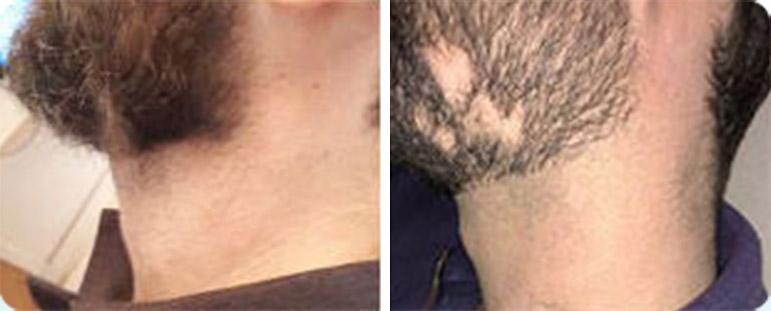 אלופציה אראטה בזקן - לפני ואחרי