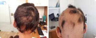 אלופציה אראטה בראש - לפני ואחרי
