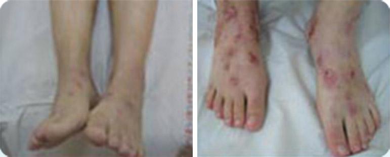אסטמה של העור ברגליים - לפני ואחרי