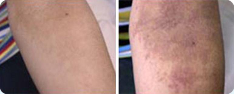 אסטמה של העור - לפני ואחרי