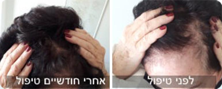 נשירת שיער נשים - לפני ואחרי