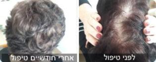 נשירת שיער נשים - לפני ואחרי טיפול