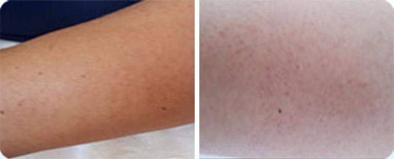 קרטוזיס פילאריס - לפני ואחרי טיפול