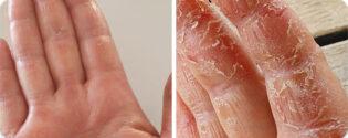 פסוריאזיס באצבעות בידיים
