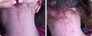פסוריאזיס חמור בקרקפת טיפול טבעי