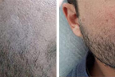 סבוריאה בפנים - לפני ואחרי