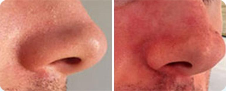 סבוריאה בפנים (באף) - לפני ואחרי