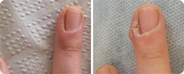 יבלות ויראליות באצבע - לפני ואחרי