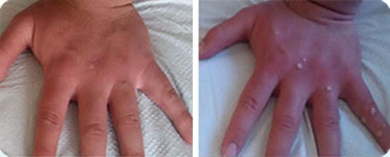 יבלות ויראליות בידיים - לפני ואחרי