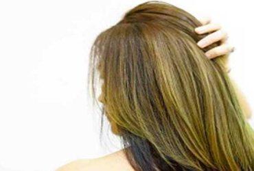נשירת שיער לאחר לידה