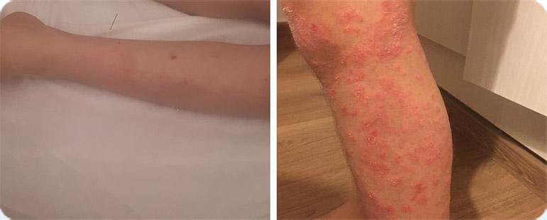 פסוריאזיס ברגל - לפני ואחרי