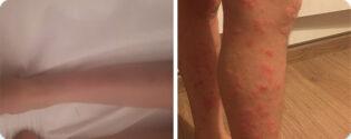 פסוריאזיס ברגליים טיפול