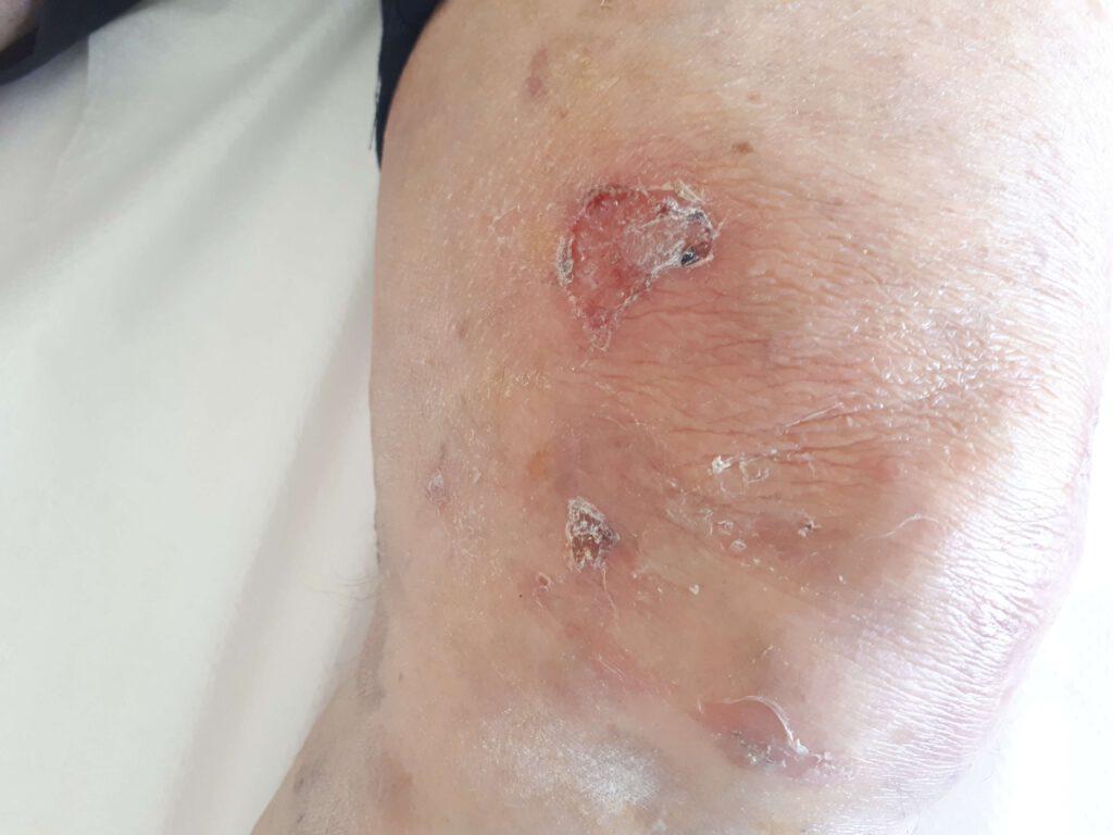 פמפיגוס וולגריס מחלת עור